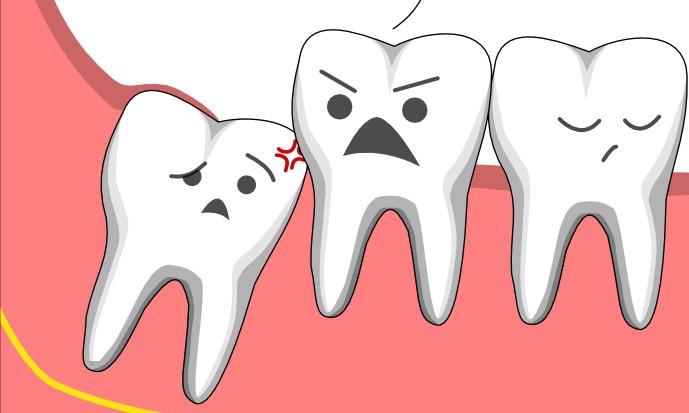 Cần lưu ý gì sau khi nhổ răng khôn ?