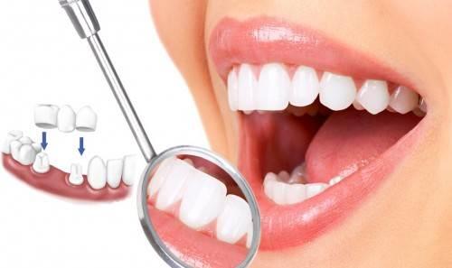 Khi nào nên bọc răng sứ ?