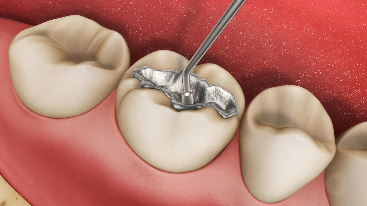 Trám răng sâu như thế nào để bền chắc ?