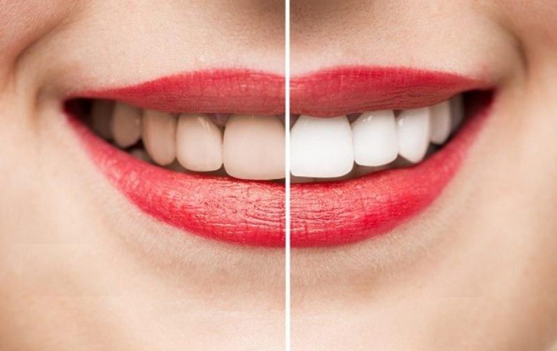 Cao răng là gì? Bao lâu thì nên đi lấy cao răng một lần?
